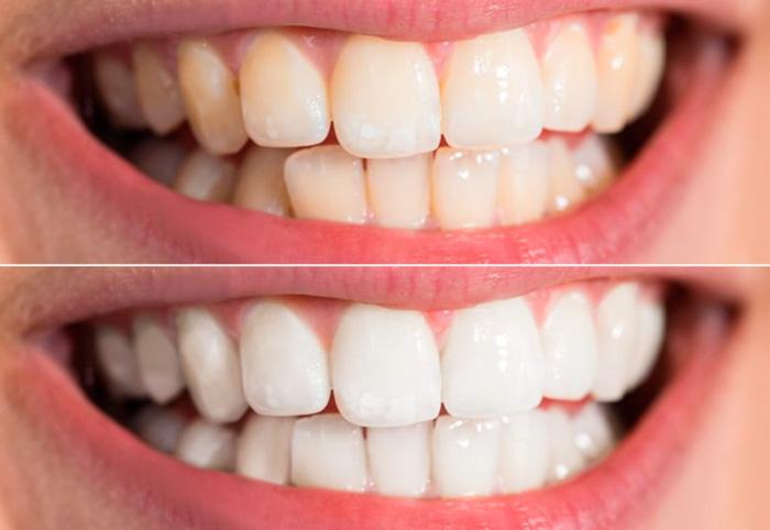 carbon white dentifricio opinioni